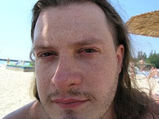Воспаленные глаза после купания в бассейне.